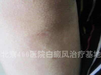 女性腿部局限白癜风2年