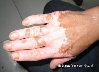萌尔肤可以治疗白癜风吗