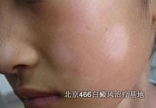 敏柏宁(甲氧沙林片)治疗白癜风有副作用吗