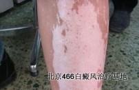 腿部白癜风怎么诊断