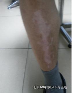 腿部白癜风初期怎么治疗