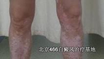 腿部白癜风常见症状有哪些