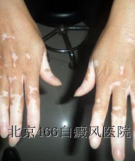 双手白癜风遗传吗