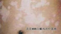 北京哪家白癜风医院治疗好