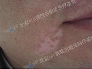 北京白癜风治疗医院:男性嘴角局限型白癜风2年