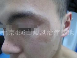 北京466白癜风医院:男性面部白癜风20天