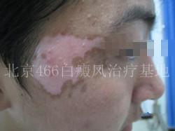 北京白癜风专科医院:男性面部白癜风三个月