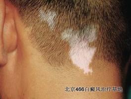 头部白癜风能染发吗