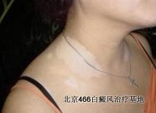 孕妇白癜风患者能不能治疗白癜风