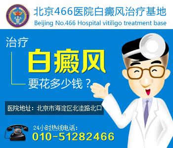白癜风去北京哪家医院治疗好