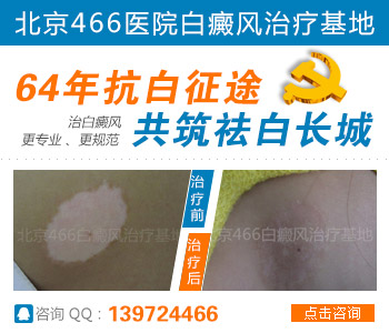 北京466白癜风专科医院