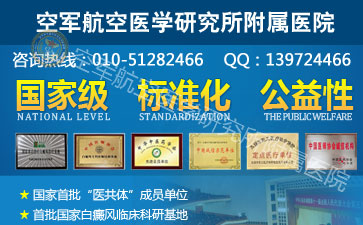 北京白癜风专家
