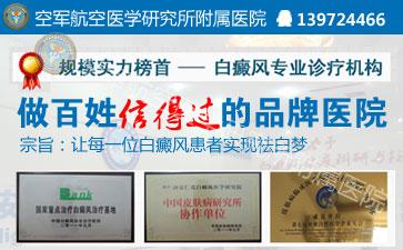 北京哪家白癜风医院治疗效果比较好