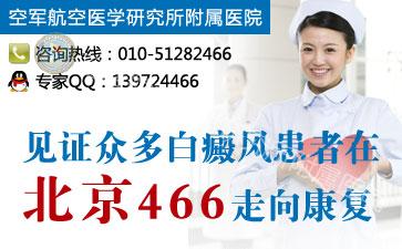 北京哪家医院治白癜风好