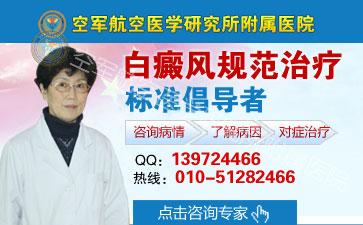北京哪里治疗白癜风最好
