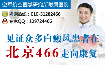 北京哪有治疗白癜风的医院