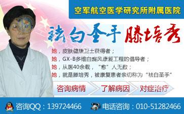 北京去哪家医院能治白癜风