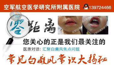 北京什么医院治疗白癜风最好