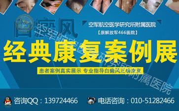 北京治疗白癜风医院哪家最权威