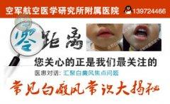 在北京治疗白癜风去哪家医院