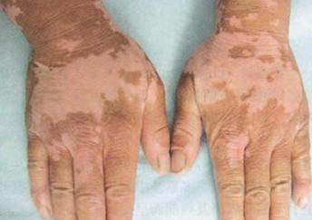 处于泛发型白癜风的患者有什么症状