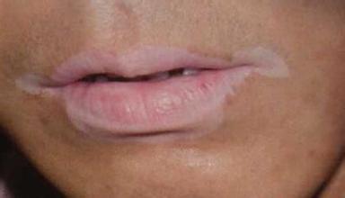 容易导致唇部白癜风的发病原因
